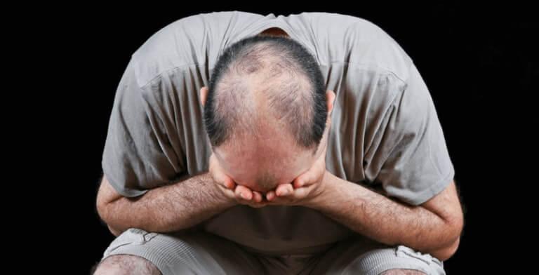 Fumo Sigaretta perdita di capelli rimedio naturale fungo Ganoderma Lucidum Reishi